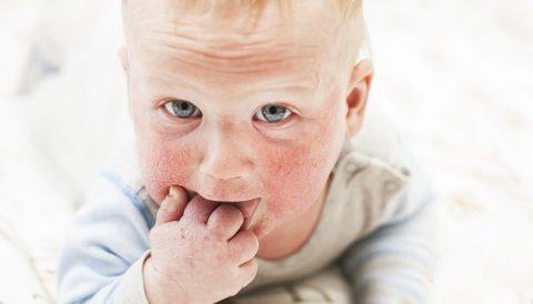 AZS u dzieci – jak leczyć?